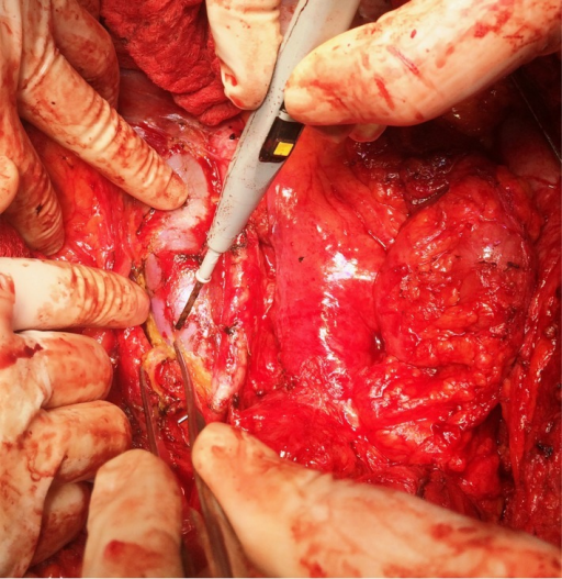 Para-aortic lymph node dissection