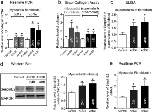 ANG-II-mediated increase in cardiac fibrosis and the serpinE2 expression.(a) qRT-PCR assay was applied for the detection of collagen I and collagen III mRNA expression in myocardial fibroblasts (n = 6, *P < 0.05 vs. control) in 50 nM AngII induced collagen deposition; (b) Sircol™ Collagen Assay was used to quantify the total collagen concentration both in fibroblasts and in the supernatants of fibroblast induced by AngII (n = 6, *P < 0.05 vs. control); (c) The expression of serpinE2 was detected by ELISA in the supernatants of fibroblasts (n = 6, *P < 0.05 vs. control); (d) Western blot analysis of serpinE2 protein (left panel) and statistical analysis (right panel) (n = 6, *P < 0.01 vs. control). Full-length blots/gels are presented in Supplementary Figure 4; (e) qRT-PCR was also used to detect expression of serpinE2 mRNA in myocardial fibroblasts stimulated by AngII (n = 8, *P < 0.01 vs. control).
