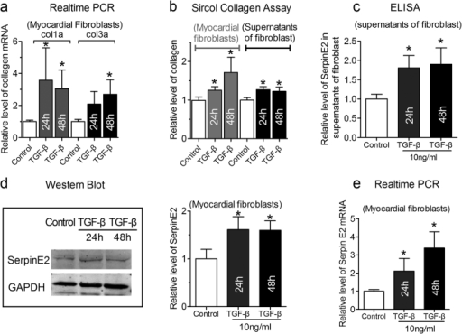 TGF-β-induced fibrosis and mediated increase in serpinE2 expression.(a) qRT-PCR assay was applied for detection of collagen I and collagen III mRNA expression in myocardial fibroblast (n = 6, *P < 0.05 vs. control) in TGF-β-induced fibrosis; (b) Sircol™ Collagen Assay was used to quantify the total collagen concentration both in fibroblasts and in the supernatants of fibroblasts (n = 6, *P < 0.05 vs. control); (c) The expression of serpinE2 was detected by ELISA in the supernatants of fibroblast (n = 6, *P < 0.05 vs. control); (d). Western blot analysis of serpinE2 protein (left panel) and statistical analysis (right panel) (n = 6, *P < 0.01 vs. control). Full-length blots/gels are presented in Supplementary Figure 5; (e). qRT-PCR was also used to detect expression of serpinE2 mRNA in myocardial fibroblasts stimulated by TGF-β (n = 8, *P < 0.01 vs. control).