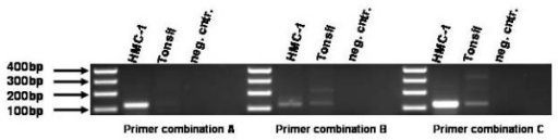 Testing of point mutated primers. 200 ng of genomic HMC1 DNA was used as a PCR template for testing the primer combinations. Primer combination A fits the most.