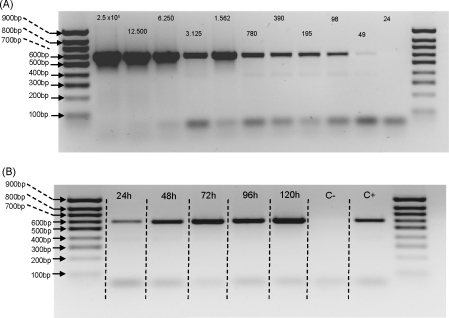 Detection of Leishmania infantum DNA using the FTA method. (A) Serial dilutions of cultured L. infantum were spotted onto FTA paper, then extraction and PCR performed using primers specific for the parasite small subunit ribosomal RNA. Numbers above bands represent the number of parasites spotted onto the FTA paper. (B) Detection of L. infantum in lab-infected Lu. longipalpis submitted to whole fly FTA extractions from 24 h to 120 h post-infection. Negative control (C−) represents FTA extraction from an uninfected sand fly, and positive control (C+) represents genomic Leishmania DNA extracted from an infected sand fly amplified using the same set of primers.