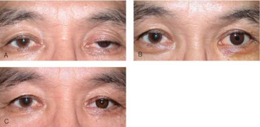 Patient 2. (A) patient with left anophthalmic ptosis. (B) elevation of left eyelid after instillation of 10% phenylephrine hydrochloride. (C) postoperative state of conjunctivomüllerectomy.