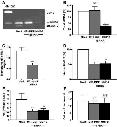 Effect of MMP-2 and MT1-MMP gene silencing on MMP-2 secretion and activation, and myofibroblast function. For MMP quantification, mock-transfected and siRNA-transfected cardiac myofibroblasts were cultured in collagen for 48 h. Functional assays were performed in parallel using mock-transfected and siRNA-transfected cardiac myofibroblasts. (A) Representative zymography of conditioned media collected at 48 h. (B) Densitometric analysis of MMP-2, NS = not significant, ⁎⁎P < 0.01 (n = 5). (C) Membrane MT1-MMP expression determined by ELISA. ⁎⁎⁎P < 0.01 (n = 5). (D) Densitometric quantification of active MMP-2 relative to mock-transfected cells. ⁎⁎P < 0.01 (n = 5). (E) Quantification of invaded cells, ⁎⁎P < 0.01, ⁎⁎⁎P < 0.001, (n = 6). (F) Quantification of migrated cells. NS = not significant (n = 6).
