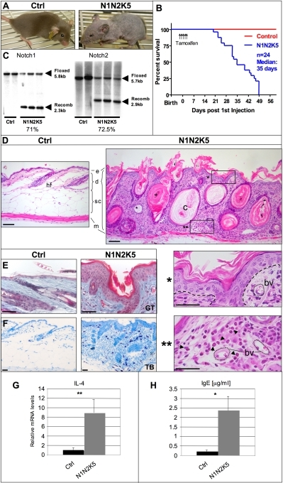 Loss of Notch signaling in post-natal epidermis leads to a severe form of atopic dermatitis and lethality.(A) Representative photograph of Control (Ctrl) and N1N2K5 mice 38 days post first injection of tamoxifen showing loss of hair, thick, dry, and scaly skin. (B) Survival curve of control (Ctrl, n = 20) and N1N2K5 (n = 24) mice after tamoxifen injection. The survival curve is the combined result of 3 individual experiments. (C) Southern blot analysis of genomic DNA from scraped epidermis from control (Ctrl, n = 2) and N1N2K5 mice (n = 3) showing the floxed and the recombined (Recomb) alleles of Notch1 and Notch2 respectively. The recombination efficiency is >70% for both genes. Three individual experiments were performed. (D) Representative HE staining on control (Ctrl) and N1N2K5 dorsal skin sections showing a thickened epidermal layer (e) a massively infiltrated dermis (d) with large epidermoid cysts (c) from degenerated hair follicles (hf) and absence of subcutis (sc) above the muscles (m). Asterisks indicate enlarged regions of the skin showing acanthosis, hyperkeratosis and spongiosis of the epidermis as well as eosinophil infiltrates (arrows) around dilated blood vessels (bv) in the dermis (n = 8, 4 individual experiments were performed). (E) Goldner's Trichrome (GT) readily shows the spongiosis and hyperkeratosis (n = 7, 4 individual experiments were performed). (F) Toluidine blue (TB) staining on control (Ctrl) and N1N2K5 skin sections showing massive infiltration of mast cells (dark blue) (n = 7, 4 individual experiments were performed). (G) Quantitative RT-PCR on dermis-derived RNA for the T helper specific cytokine IL-4 from Ctrl and N1N2K5 mice. The experiment was performed in triplicates (n = 3 per sample group, two individual experiments were performed). (H) A 16-fold increase in serum IgE levels is observed in N1N2K5 compared to Ctrl mice. The experiment was performed in triplicates (n = 3 per sample group, three individual experiments). (* p<0.01; ** p<0.001). [Scale bars: 50 µm].