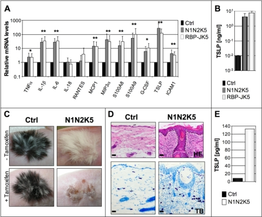 Notch signaling deficient epidermis massively produces TSLP.(A) qRT-PCR analysis of inflammatory cytokines on scraped epidermis of control (Ctrl, n = 3), N1N2K5 (n = 3) and RBP-JK5 (n = 3) mice (* p<0.01; ** p<0.001) showing relative increased expression of a wide panel of cytokines in mutant mice. TSLP shows the highest relative increase (125 fold) in mRNA among the tested cytokines. Three individual experiments were performed. (B) Serum TSLP levels in control (Ctrl, n = 4), N1N2K5 (n = 4) and RBP-JK5 (n = 4) mice revealing a 400 fold increase of this cytokine in mutant mice. The experiment was performed in triplicates. (C-D) Control (Ctrl) and N1N2K5 new born skin was grafted onto Athymic nu/nu mice and allowed to grow for 2 months (-Tamoxifen, n = 3). After induction of Cre-mediated recombination (+Tamoxifen, n = 3), the graft develops a similar phenotype to N1N2K5 mice. H/E and Toluidin blue staining shows acanthosis, hyperkeratosis, spongiosis, epidermoid cysts and massive infiltration of mast cells in the dermis of the N1N2K5 derived graft. Three individual experiments were performed. (E) TSLP serum levels of athymic nu/nu mice after grafting the skin of control (Ctrl) or N1N2K5 mice and subsequent gene inactivation. Serum from 3 Ctrl and 3 grafted Athymic nu/nu mice were pooled for the analysis. Bars represent the mean of two individual experiments.
