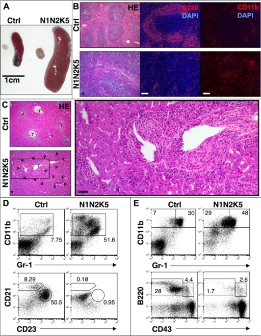 N1N2K5 mice develop a myeloproliferative disorder (MPD).(A) Representative images of spleen and lymph node of control (Ctrl) and N1N2K5 mice showing splenomegaly and lymphadenopathy (n = 12, three individual experiments). (B) HE staining, B220 and CD11b immunofluorescence on spleen sections showing a loss of normal splenic architecture with fibrosis, loss of follicular structures (B220+ B cells) and increase in CD11b+ myeloid cells in N1N2K5 mice (n = 12, three individual experiments). (C) Representative HE staining on liver sections from control and N1N2K5 mice. The liver structure with terminal hepatic venules (v) and portal tracts (T) is changed due to periportal invasion of inflammatory cells and fibrotic reactions in Notch mutant mice (arrows and insert, n = 8, two individual experiments). (D) Representative flow cytometric analysis of splenic myeloid and B cells showing a massive increase in myeloid cells (CD11b+Gr-1int) and loss of follicular (B220+CD23+CD21int) and marginal zone B cells (B220+CD23lo/-CD21+) in N1N2K5 mice. (E) Representative cytometric analysis of bone marrow myeloid and B cells showing an increase in myeloid (CD11b+Gr-1int) and a block of B cell development at the pre-pro B stage (B220+CD43+). Numbers indicate the percentage of cells in each gate. Results are representative of n = 12 per sample group of three individual experiments. [Scale bars: 50 µm].