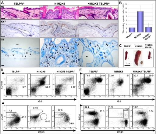 TSLP is causative of both AD and MPD in N1N2K5 mice.TSLPR−/− mice were indistinguishable from wild type mice and therefore only the results of TSLPR−/− mice are shown. (A) Representative skin sections of TSLPR−/−, N1N2K5 and N1N2K5 TSLPR−/− mice stained for HE (upper panels), Ki67 (middle panels) and Toluidin blue (lower panels). Notch mutant mice lacking TSLPR have a markedly less proliferative epidermis, do not develop spongiosis and have large a reduction in dermal inflammatory cells (arrows, n = 6 per sample group, three individual experiments). (B) Myeloid cell counts in peripheral blood, and (C) spleen and lymph node (LN) macroscopy from TSLPR−/−, N1N2K5 and N1N2K5TSLPR−/− mice showing a rescue of the MPD phenotype. The bar diagrams represent mean values ± SD (n = 3 for each genotype of mice, three individual experiments). Representative flow cytometric analysis of myeloid and B cells of the spleen (D) and bone marrow (E) from TSLPR−/−, N1N2K5 and N1N2K5 TSLPR−/− mice stained for CD11b and Gr1, CD21 and CD23 (gated on B220+ splenic B cells), or B220 and CD43 (n = 6 per sample group, three individual experiments). [Scale bars: 50 µm].