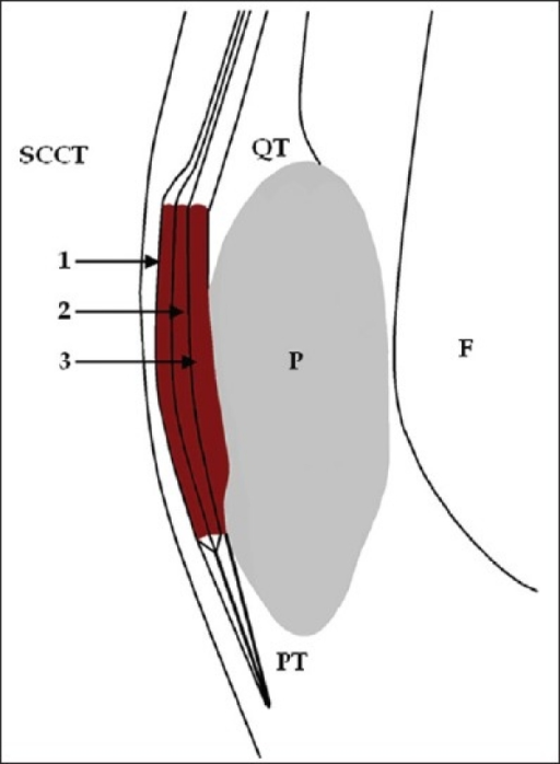 Line Diagram Showing Compartmentalization Of The Prepat Open I