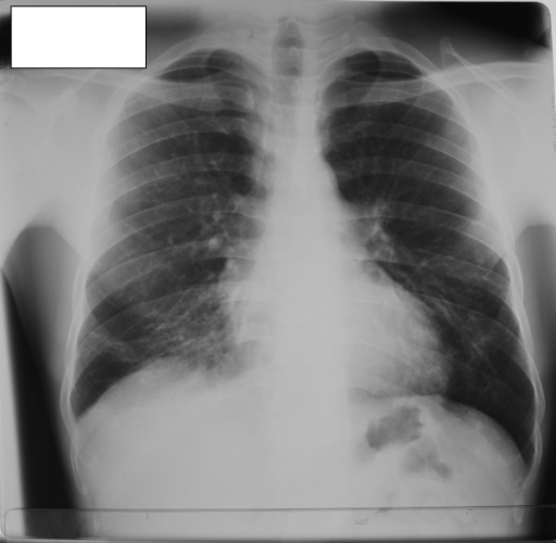 Chest roentgenogram from our patient. Features of previous pulmonary tuberculosis can be seen.