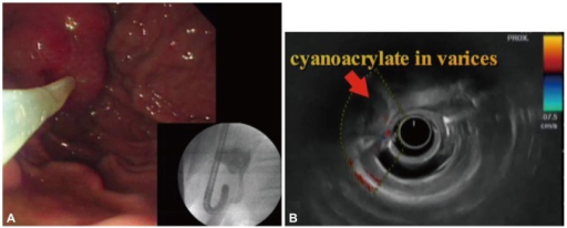(A) Endoscopic cyanoacrylate therapy of the isolated gastric varix was performed. The picture shows cyanoacrylate with lipiodol filling the varix in fluoroscopic view. (B) On endosonography 2 weeks later, there was no blood flow in the varix.