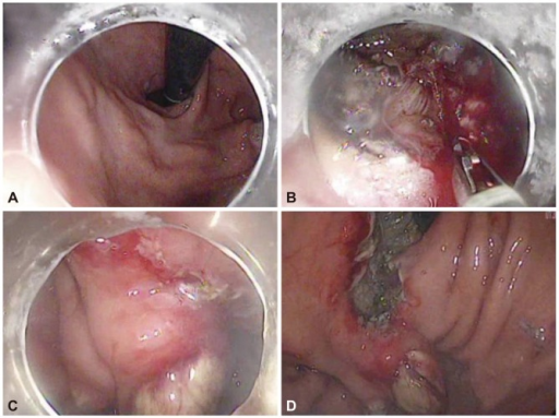 Endoscopic submucosal dissection of the early gastric cancer (EGC) showing the EGC and treated varix before (A) endoscopic submucosal dissection, (B) the incision with muscle exposure, (C) the incision above the varix, and (D) a large artificial ulcer after the resection.