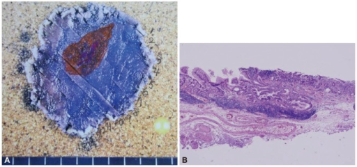 (A) Pathologic mapping of the specimen shows the tumor in the center of the specimen. The tumor was completely resected with free lateral and vertical margins. The orange area depicts the area where the tumor invaded no further than the mucosal layer and the purple area show the area of submucosal invasion. (B) Microscopic findings revealed adenocarcinoma with minimal submcosal invasion, to a depth of 150 µm (H&E stain, ×100).