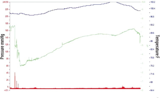 SmartPill pH, pressure and temperature tracing in one pig over 24 hours. The pH tracing is shown in green, the pressure tracing in red and the temperature in blue.