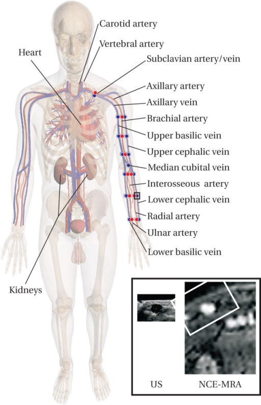 Overview Of The Anatomy Relevant For Vascular Access Su Open I