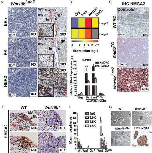 The self-renewal marker HMGA2 is highly expressed in Wnt10bTG mammary tumours and mammary placodesA. IHC for oestrogen receptor α (ERα), progesterone receptor (PR) and Her2 to validate the triple-negative phenotype of Wnt10bLacZ tumours. Wild-type (WT) uterus and Her2 tumour samples were used as positive controls. Highlighted are myoepithelial (myo), glandular epithelial (ge), luminal epithelial (le) and stromal cells (s).B. Hierarchical clustering of microarray data of Hmga2 and Hmga1 expression in Wnt10b-driven tumours.C. Validation of Hmga2 and Hmga1 expression in tumour cells (Tu), Lin−LacZ+ (LacZ+) tumour cells compared to wild-type virgin (Virg) and ErbB2TG tumour cells, as determined by qt-PCR. Error bars represent the means and the standard deviations from three independent experiments; **p-value = 0.007 versus Virg or ErbB2TG Tu samples (Student's t-test).D. IHC of HMGA2 in WT mammary glands, and ErbB2TG and Wnt10bLacZ tumours. Red arrowheads highlight cells positive for HMGA2 and black arrowheads negative cells, respectively.E. IHC of HMGA2 in WT and Wnt10b knockout (Wnt10b−/−) mammary placodes (mp) at embryonic Day 14.5 reveals loss of HMGA2 expression in Wnt10b−/− mp. Dashed black lines indicate Wnt10b−/− mp. Mesenchymal (M: red arrow head), epidermis layer (EL: short black arrow) and mammary anlagen (MA: long black arrow).F, G. Mammosphere assays (MSA) of WT and Wnt10b−/− mammary gland cells and MMTV-Wnt10bLacZ primary tumour cells that were serially passaged (at Day 10 and 20) and analysed at Day 30. Secondary spheres were counted in sequential dilutions and imaged using a phase contrast microscope. Biological replicates (n = 3) and six technical replicates are shown. Wnt10bLacZ-derived MSAs analysed by IHC for HMGA2 is shown (10×) in lower right panel of G (bar, 50 µm). In F error bars represent the means and the standard deviations from three independent experiments; p values: a = 0.04, b = 0.03 versus wild-type or Wnt10b−/− samples (Student's t-test). p Values of <0.05 were considered to be statistically significant (C, F).