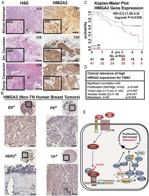 Triple-negative human breast cancers specifically express high levels of nuclear HMGA2, whose expression has clinical relevance and predicts recurrence-free survival of TNBC patientsDetection of nuclear HMGA2 in human TNBC from different patient groups, as shown by IHC of tissue microarrays. hematoxylin–eosin (H&E) staining from an adjacent section is shown on the left. Arrows indicate enlarged areas shown in insets (40×). Bar, 200 µm.Absence of nuclear HMGA2 expression in other subtypes of human breast cancer (ER+, PR+, HER+, and triple-positive), as analysed by IHC. Bar, 200 µm.Kaplan–Meier survival analysis showing significantly improved recurrence-free survival of Basal-like breast cancer patients with tumours that express lower levels of HMGA2. Patients with higher (red) and lower expression (black) are indicated as well as numbers of patients at risk at specific time points (below each diagram). Hazard ratios (HR) and p values (log rank p) are depicted for each survival analysis. Kaplan–Meier survival data were generated using the publicly accessible online tool KM-plotter.High HMGA2 expression in TNBC is significantly correlated with large tumour size, high proliferation, high nuclear grade and metastasis (HMGA2 expression was determined by IHC in TNBC patient samples and results were correlated with patient data). Associations between markers and clinical parameters that were measured on a continuous or ordinal scale were evaluated using Kendall's Tau coefficient. Associations between markers and binary clinical parameters were tested using an exact trend test, associations with nominal parameters were tested using Fisher's exact test. p Values and patient numbers (n) are indicated in the table. Additional information can be found in Supporting Information Fig S7 and the Materials and Methods Section. p Values of <0.05 were considered to be statistically significant (C, D).Proposed model for WNT10B/β-catenin signalling inducing HMGA2 expression. WNT10B activates canonical Wnt/β-catenin signalling leading to up-regulation of HMGA2 and self-renewal by induction of cell cycle proliferation. ICG-001 disrupts CBP/β-catenin interaction leading to the loss of HMGA2. Black dash arrows and red dash blocking bars represent a possible mechanism of HMGA2 action and/or loss of β-catenin transcriptional activity.