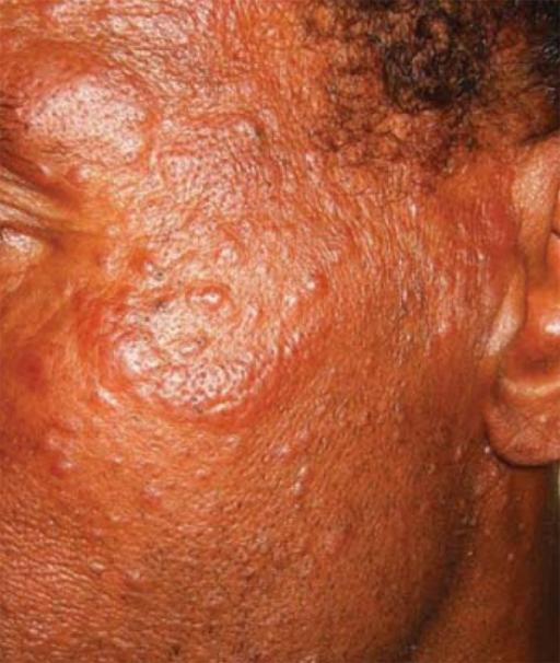 Clinical presentation (left sideof the face). Multiple small monomorphic papulesand plaques slightly infiltrateds