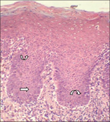 Photomicrograph showing basilar hyperplasia (straight arrow) and hyperchromtic nuclei in group3 (curved arrow). (H&E stain, ×200)