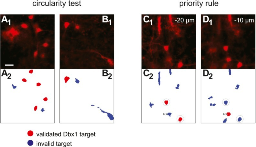 Detection of Dbx1 neuron targets via fluorescence and image processing.(A1, B1, C1, D1) Images from the preBötC of Dbx1+/CreERT2; Rosa26tdTomato mice showing tdTomato in neurons derived from Dbx1-expressing precursors (i.e., Dbx1 neurons). Scale bar in A1 is 20 µm and applies to all panels. C1 and D1 show the same field of view at two different depths (−20 and −10 µm, respectively). (A2, B2, C2, D2) Masks of ROIs obtained by analyzing the corresponding images above. Red ROIs are deemed valid targets by the circularity test, which evaluates somatic shape; blue ROIs that fail the circularity test are rejected. Circularity analyses distinguish somata from auto-fluorescent detritus (A1, A2) as well as contiguous soma-dendrite images (B1, B2) and isolated segments (shafts) of dendrites (C1, C2, D1, D2). Non-somatic auto-fluorescence is rejected because it does not accurately indicate underlying neurons. Dendritic segments are not valid targets because they are difficult to target in the ablation phase of the experiments and their cell bodies are detectable in adjacent focal planes. Often, a cell rejected by the circularity test in one focal plane (e.g., C2, graygray double arrowhead) is validated in the adjacent plane (D2, graygray double arrowhead). When ROIs that pass the circularity test are detected in more than one focal plane, they are validated or rejected according to the priority rule. ROIs from a deeper focal plane (−20 µm) are validated by circularity and thus colored red (C2, circled ROIs). Subsequent detection of overlaying ROIs at the superficial focal plane (−10 µm), which also pass the circularity test, are nonetheless rejected by the priority rule and thus colored blue (D2, circled ROIs). These criteria for target detection are more fully described in 'Materials and methods' and Wang et al. (2013).DOI:http://dx.doi.org/10.7554/eLife.03427.005