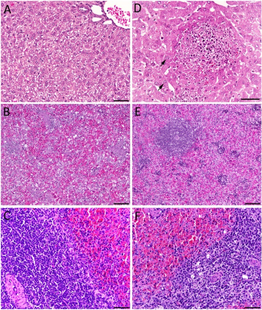 Histological findings in livers and spleens from RVFV-i | Open-i