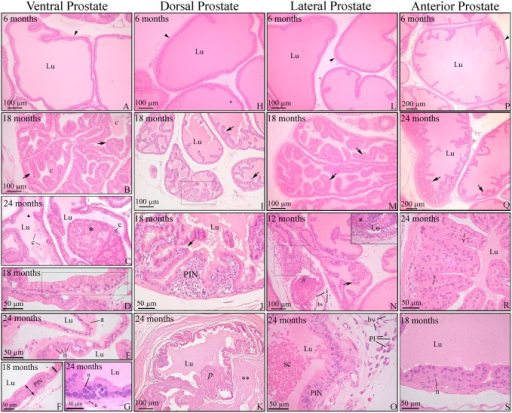 Histopathology of the prostatic complex of rats at different ages.Ventral (A-G); dorsal (H-K); lateral (L-O) and anterior (P-S) prostate. (A, H, L and P) Prostates of young adult rats showed normal histology. (B, I, M and Q) Senile rats showed increased unfolding of the epithelium (arrows) in all prostatic lobes. (B) Luminal concretions (c). (C) Epithelial proliferation resulted in cribriform architecture with intraluminal growing (*) in the ventral prostate. (D) Mucinous metaplasia of the epithelium (bounded area). (E) Epithelial atrophy (a) and area of a cell with nuclear enlargement and prominence of nucleoli (n). (F and G) Hyperproliferative epithelium with characteristic foci of prostatic intraepithelial neoplasia (PIN). (G) Cells with evident nuclear enlargement (n) in the PIN area. (J) Detail of the prostatic intraepithelial proliferation observed in the bounded area of the dorsal prostate in panel I. (K) Epithelial proliferation with papillary growth. Thickening of the stroma (**) occurred around the lesion. (N) Lateral prostate with epithelial hyperplasia (arrow) as well as foci of inflammatory cells infiltrating the epithelium (bounded area), lumen (#) and stroma (i). (O) PIN area next to an inflammatory cell infiltrate containing plasma cells (Pl). Cells sloughed into the lumen (sc). (R) Intense unfolding and vacuolization in the epithelium of the anterior prostate (v). (S) PIN area in the anterior prostate with some nuclear atypia (n). Arrowhead = perialveolar smooth muscle cell; Pl = plasma cells; bv = blood vessel; c = luminal concretions; Lu = lumen. Stained with H&E.