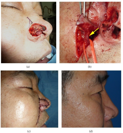 (a) Right ala nasi defect after wide excision of squamous cell carcinoma. (b) The nasolabial artery perforator flap was elevated showing its perforator (arrow). (c) Immediate postoperative photo. (d) Follow-up clinical photo 3 years after surgery.
