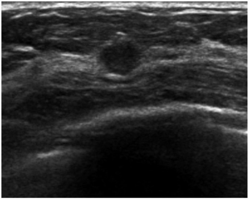A US-detected cancer in a 49-year-old woman that was initially assessed as BI-RADS category 4A (case 2 in Table 3). US shows an illdefined oval hypoechoic mass in right breast and it was assessed as category 4A. The pathologic diagnosis was invasive ductal cancer with ductal carcinoma in situ. US, ultrasound; BI-RADS, Breast Imaging Reporting and Data System.
