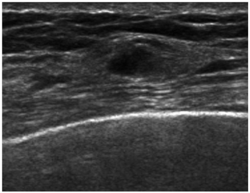 A supplementary screening US detected cancer case in a 40-year-old woman that was initially assessed as BI-RADS category 3 (case 8 in Table 2). Initial supplementary screening US was assessed as BI-RADS 3 due to multiple small oval isoechoic nodules in both breasts. Diagnostic US after 6 months revealed that the mass in right breast increased in size up to 1.1 cm, and it was still not palpable. Both initial and follow-up mammograms were negative (not shown here). The pathologic diagnosis was invasive ductal cancer. US, ultrasound; BI-RADS, Breast Imaging Reporting and Data System.