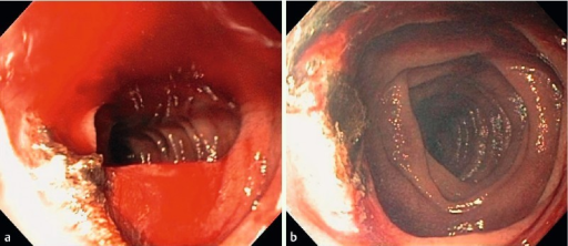 Active bleeding from jejunal Dieulafoy lesion after initial argon plasma coagulation. b Cessation of bleeding after final argon plasma coagulation therapy.