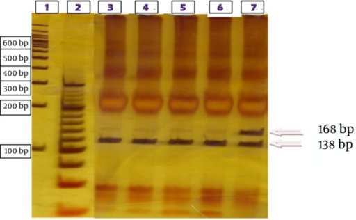 Restriction Digest Assay for Y253H Mutant BCR-ABL in Mutation Negative (Tracks 3 - 6)The lower band (138 bp) represents the long fragment after digestion of mutation-negative transcripts with allele T and the upper band (168 bp) the undigested and mutant allele with substitution of allele C. Mutant transcript (track 7).