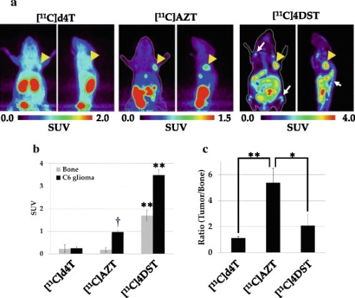 Comparisons of the in vivo accumulation level of thymidine analogs in C6 tumor-bearing mice. Summed PET images (60 to 80 min) of C6 tumor-bearing mice after injection of 50 MBq of [11C]AZT, [11C]d4T or [11C]4DST (a). The color code for the standardized uptake value (SUV) is shown at the bottom. Arrowheads indicate the C6 tumors. Arrows indicate bone or bone marrow regions. The graph in (b) shows the SUVs from PET images for tumor tissue and bone. Data are presented as means ± S.D. (n = 4 to 6). One way ANOVA;**P < 0.01 vs. [11C]AZT and [11C]d4T injected mouse. †P < 0.01 vs. [11C]d4T injected mouse. The graph in (c) shows the ratio of tumor-to-bone uptake of the labeled probes. One way ANOVA;*P < 0.05 vs. [11C]4DST injected mouse. **P < 0.01 vs. [11C]d4T injected mouse