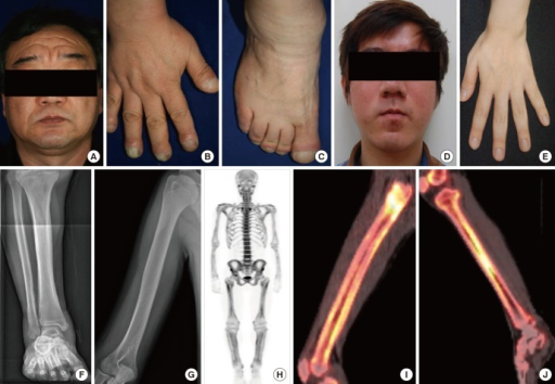 Clinical features of affected individuals with SLCO2A1 mutations.(A-C) Clinical pictures of family 1 proband. (A) Thickening and furrowing of the facial skin. (B-C) Digital clubbing and swelling of the ankle joint. (D-H) Clinical pictures of family 2 proband. (D) Thickening and greasiness of facial skin. (E) Digital clubbing. (F-G) Cortical hyperostosis of long bones. (H) Diffusely increased uptake in the whole axial and appendicular long bones shown by whole body bone scan. (I-J) 18F-fluoride PET scan images of femur and tibia show increased cortical/periosteal uptake in the proband of family 3.