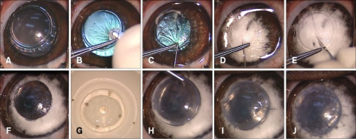 Procedures for deep anterior lamellar keratoplasty using the big bubble technique. (A) The center of the cornea was trephined 750 µm using an 8 mm vacuum trephine. (B) A partial-thickness superficial anterior keratectomy was performed. (C) A 30-gauge needle attached to a 5 cc syringe was inserted at the base of the trephination gutter into the corneal stroma. (D) 4 mL of air were gently injected, causing Descemet's membrane (DM) to separate from the deep stroma. Intrastromal blanching was observed during this procedure. (E) A blanched stroma was incised with a 15° slit-knife to allow air to escape and collapse the bubble for stroma removal. (F) DM was exposed after excising the remaining stroma using corneal scissors. (G) After DM and endothelium were stripped off, the donor cornea was punched from the endothelial side using an 8.5 mm diameter Barron punch. (H) This prepared donor corneal button was fitted onto the exposed Descemet's plane of the recipient cornea. (I) Four cardinal sutures were used with 10-0 nylon at the 3, 6, 9, and 12 clock-hour positions. (J) A single running suture was performed with 16 to 18 bites using the same suture materials.