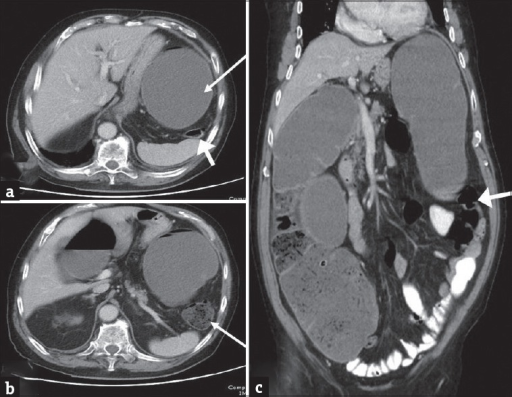 Colorectal Cancer A And B Axial Contrast Enhanced Co Open I