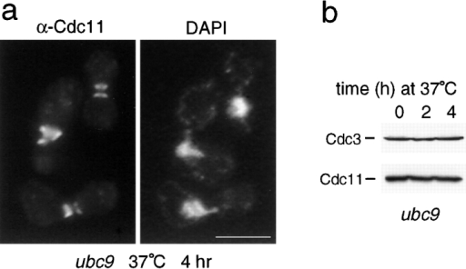 Septins are stable in a ubc9 mutant. Strain YWO102 (ubc9) was grown to log phase in rich medium (YPD) at 25°C and shifted to 37°C for the indicated period of time. a, Cdc11 was visualized by immunofluorescence microscopy using a polyclonal antibody against Cdc11 and DNA by DAPI staining. Bar, 5 μm. b, Whole cell lysates were analyzed by SDS-PAGE and immunoblotting with a polyclonal antibody against Cdc3 (top) or against Cdc11 (bottom).