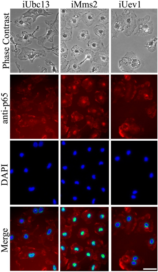 Requirement of Ubc13 and Uev1A for LPS-induced p65 translocation. Phase contrast, p65-ICC, and DAPI staining were performed 4 d after transfection of mouse microglia with RNAi constructs as indicated, followed by a 1.5-h exposure to 1 μg/ml LPS and fixation. Merged images indicate colocalization of p65 immunostaining with nuclei. Identical color adjustment was made to all merged images to enhance differential colocalization. Bar, 10 μm.
