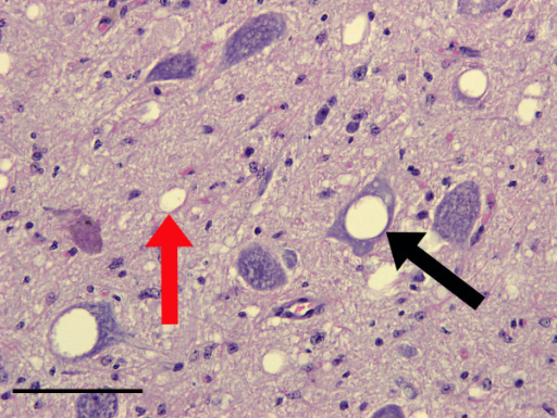 Spongiform change in the obex of the brain from a clinically affected BSE challenged deer. Note the optically empty vacuoles in both neuronal perikarya (black arrows), occasionally containing membranous debris, and also the neuropil (red arrows). Haematoxylin and eosin. Bar = 50 μm.