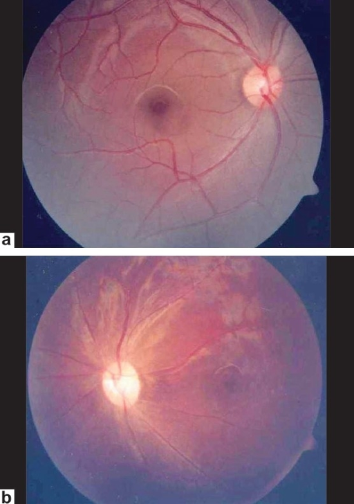 Fundus photograph of case 2 showing mild optic disc pallor in right eye (a) and pale optic disc in left eye (b)