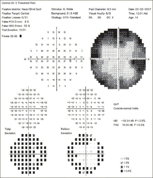 Serial photographs of visual fields of the right eye 10 months after starting HAART