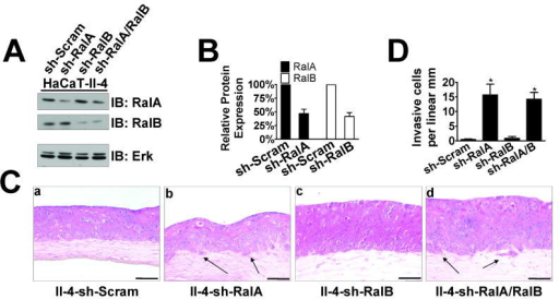 Suppression of RalA expression by shRNA induces invasive properties in 3D tissues(A) Western blot analysis of Ras-expressing HaCaT-II-4 cells expressing shRNA against RalA, RalB, or both RalA and RalB. Total Erk is shown as a loading control. (B) Quantification of RalA or RalB knockdown compared to control determined by densitometry in the linear range. (C) Scrambled (a), RalA knockdown (b), RalB knockdown (c), or RalA/RalB double-knockdown (d) HaCaT-II-4 cells were grown on collagen gels and tissues were stained with H&E. Bar: 100μm. Invading cells in representative images are shown with arrows and quantified from >100 microscope fields in >20 sections from multiple experiments (D). * p < 0.05 for sh-RalA and sh-RalA/B compared to sh-Scram using Mann-Whitney test.