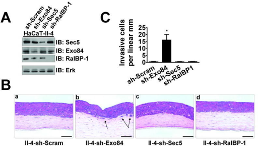 Suppression of the Ral effector Exo84 expression by shRNA induces invasive properties of HaCaT II-4 cells in 3D tissues(A) Western blot analysis of Ras-expressing HaCaT-II-4 cells expressing scrambled shRNA or shRNA against Exo84, Sec5, or RalBP-1. Total Erk is shown as a loading control. (B) Scrambled (a), Exo84 knockdown (b), Sec5 knockdown (c), or RalBP-1 knockdown (d) HaCaT-II-4 cells were used to populate tissues as described and stained with H&E. Bar: 100μm. Invading cells in representative images are shown with arrows and quantified from >100 microscope fields in >20 sections from multiple experiments (C) and two different shRNA sequences. * p < 0.01 for sh-Exo84 compared to sh-Scram using Mann-Whitney test.