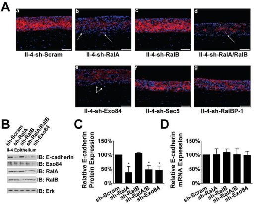 Acquisition of invasive properties of II-4 cells upon RalA or Exo84 knockdown is associated with a decrease in E-cadherin protein expression(A) Scrambled (a), RalA knockdown (b), RalB knockdown (c), RalA/RalB double-knockdown (d), Exo84 knockdown (e), Sec5 knockdown (f), or RalBP-1 knockdown (g) HaCaT-II-4 cells were used to populate tissues and frozen sections were subjected to immunofluorescent analysis with anti-E-cadherin antibody (red). DAPI was used to counterstain the nuclei. Invading cells in representative images are shown with arrows. (B) Western blot analysis of homogenized epithelium from tissues shown in (A). Total Erk is shown as a loading control. E-cadherin expression protein (C) and mRNA (D) were measured in the linear range by densitometry or real-time PCR, respectively. * p < 0.05 for sh-RalA, shRalA/B, and sh-Exo84 compared to sh-Scram using Mann-Whitney test.