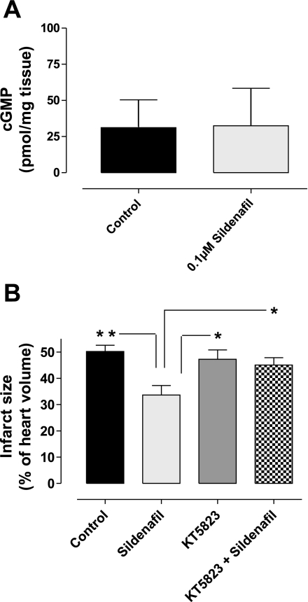 A: whole heart cGMP levels. Isolated mouse hearts were subjected to 30 min global ischemia followed by 10 min reperfusion with control vehicle or the cardioprotective 0.1 μM sildenafil treatment. cGMP analysis showed that the cyclic nucleotide levels were similar in both groups. Bars represent means ± SE; n = 6 animals; not significantly different when compared with controls. B: the effect of 0.1 μM sildenafil at reperfusion in the absence or presence of the PKG inhibitor KT-5823 on infarct size. Infarction has been measured as a percentage of total myocardial volume. PKG inhibition blocked the sildenafil-dependent protection from infarct. Bars represent means ± SE; n = 3–5 animals. *P < 0.05 vs. control (1-way ANOVA); **P < 0.01.