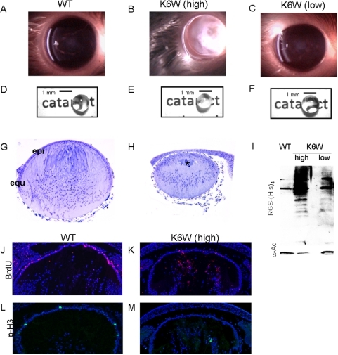 K6 on Ub is essential for proper lens formation and clarity.Slit-lamp photographs of P90 mouse lenses. Lenses expressing high levels of K6W-Ub (A) show severe cataracts whereas lenses from animals expressing low levels of K6W-Ub (C) are clear, comparable to wild type (B). (D, E, F) Head-on photographs of P30 lenses. Lenses expressing high levels of K6W-Ub are cloudy and opaque. Note that the print behind the lens in panel E cannot be seen as it is in panels D and F. Lens from animals expressing low levels of K6W-Ub are clear comparable to Wt. (G, H) Light micrographs from E18.5 days Wt and K6W-Ub lenses. Lenses expressing high levels of K6W-Ub were ∼2/3 the size of Wt lenses. (I) P30 lenses from high or low K6W-Ub-expressing animals show different levels of K6W-Ub-containing conjugates. Lenses from Wt and transgenic animals were lysed and expression of transgene was determined by western blotting using anti-RGS(His)4. (J–M) Fluorescent micrographs of E18.5 K6W-Ub-expressing lens show attenuated proliferation compared to Wt. (J, K) BrdU (red) incorporation assay was used to detect S-phase cells in mouse lenses. K6W-Ub-expressing lenses show limited incorporation of BrdU compared to Wt. (L, M) Phospho-H3 (green), also shows that K6W-Ub-expressing lenses have decreased proliferation compared to Wt lenses. Immunohistochemistry was used to detect incorporation of BrdU and expression of phospho-H3, using anti-BrdU and anti-phospho-H3 antibodies respectively. DAPI was used to stain nuclei.