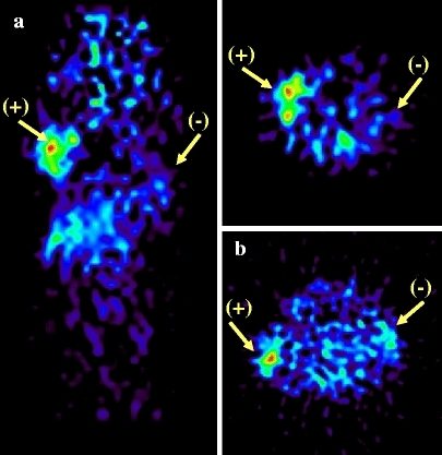 Micro-PET imaging of CEA reporter proteins. a Coronal and transverse views of a nude mouse with TR(1–99)-NA3 transfected (+) and nontransfected (−) xenografts, injected with 140 μCi of 124I-labeled anti-CEA scFv-Fc H310/H435Q fragment at 24 h after injection. b Transverse view of a nude mouse with NA3-CD5 transfected (+) and nontransfected (-) xenografts, injected with 100 μCi of 64Cu-labeled anti-CEA scFv-Fc H310A fragment at 21 h postinjection.