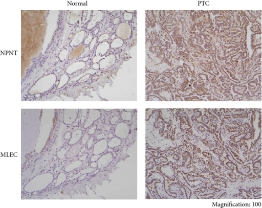 Immunohistochemical localization of NPNT and MLEC in normal thyroid tissue and PTC. Only weak staining of NPNT and MLEC were observed in follicular epithelium of normal thyroid tissue (surrounding tumor). In PTC, strong staining was seen with both antibodies (Normal: normal thyroid tissue, PTC: Papillary thyroid carcinoma).