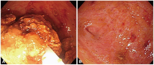 (A) Colonoscopic view of breaking down the fecaloma with a polypectomy snare. (B) Colonoscopy reveals the lumen of the cecum after the fecaloma was successfully removed by the endoscopic procedure.