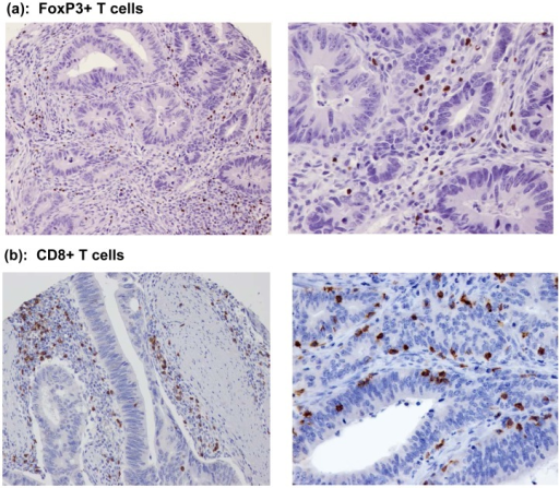 Immune marker expression in colon carcinomas.Expression of FoxP3+ (a) and cytotoxic CD8+ (b) proteins in T lymphocytes, determined by immunohistochemistry, is shown infiltrating the tumor stroma and epithelia of resected colon carcinomas (left, 20× objective; right, 40× objective).