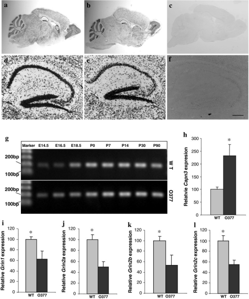 Altered expression levels of Capn3 and Grin1-Grin2C at P14. a–cCapn3 was detected to be expressed in the cerebellum, hippocampus, rostral migratory stream, and olfactory bulb of wild-type (a) and O377 mutant mice (b); no staining was ever observed with the sense control (c). d–f Close-up of the Capn3 expression in the hippocampus (d wild-type; eO377; f sense control). gCapn3 was detected by RT-PCR in the hippocampus at different developmental stages (E14.5–E18.5) and postnatally (P0–P30) in wild-type and O377 mice. h–l Normalized expression ratios of Capn3 (h), Grin1 (i), Grin2A (j), Grin2B (k), and Grin2C (l) in wild-type and O377 mutant mice determined by real-time PCR at P14. The relative gene expression levels were calculated by the ratio of the mRNA level of the gene of interest versus the expression level of the mRNA of a housekeeping gene, Tuba1a, according to the 2−ΔΔCt method (WT = 100 %).*p ≤ 0.05, Student's t test, n ≥ 4. Error bar SEM
