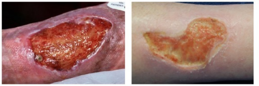 Photographs of chronic wounds grabbed by a digital camera.